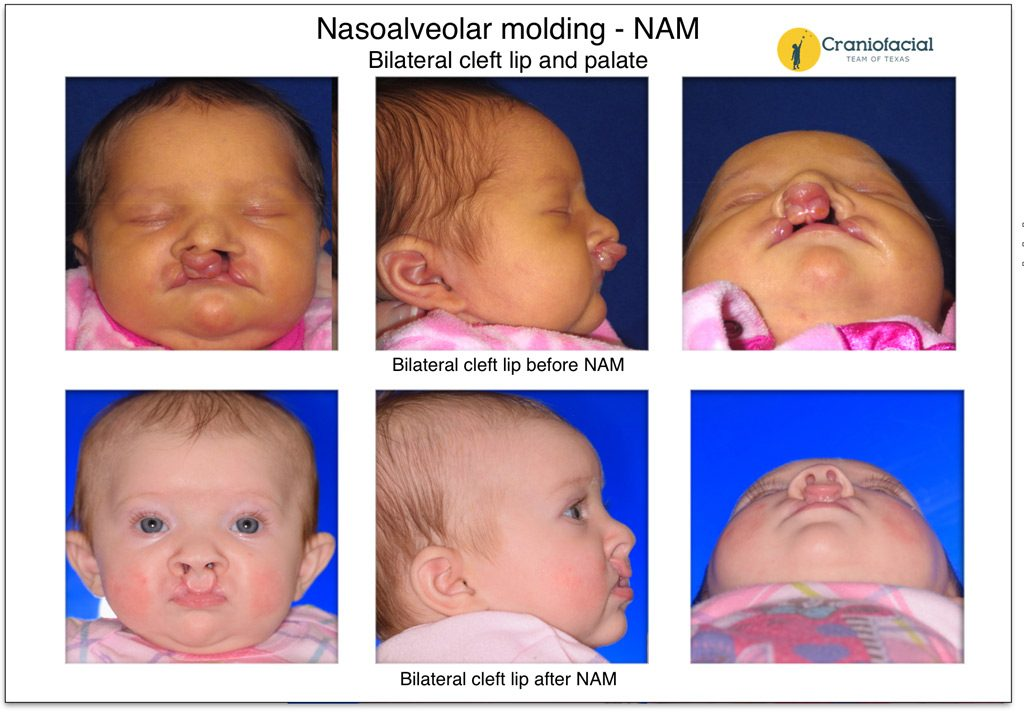 Nasoalveolar Molding (NAM) Bilateral cleft lip and palate