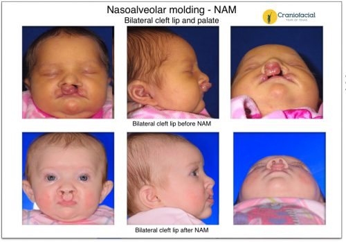 Nasoalveolar Molding (NAM) Bilateral cleft lip and palate