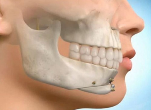 Chin Adjustment Surgery (Osseous Genioplasty)