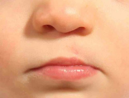 Craniofacial Team of Texas performs Cleft Lip and Cleft Palate Surgery