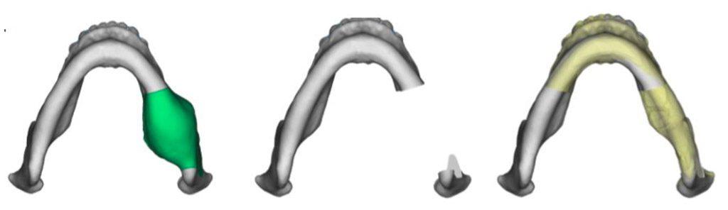 Virtual Surgery and Technology