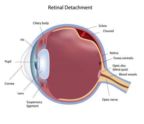 Stickler Syndrome – Hereditary Progressive Arthro-Ophthalmopathy