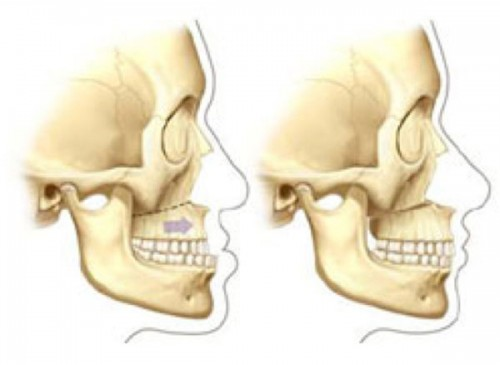 Upper Jaw Surgery (Le Fort I Osteotomy)