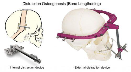 Distraction Osteogenesis (Bone Lengthening) Craniofacial Team of Texas (CTOT) Austin