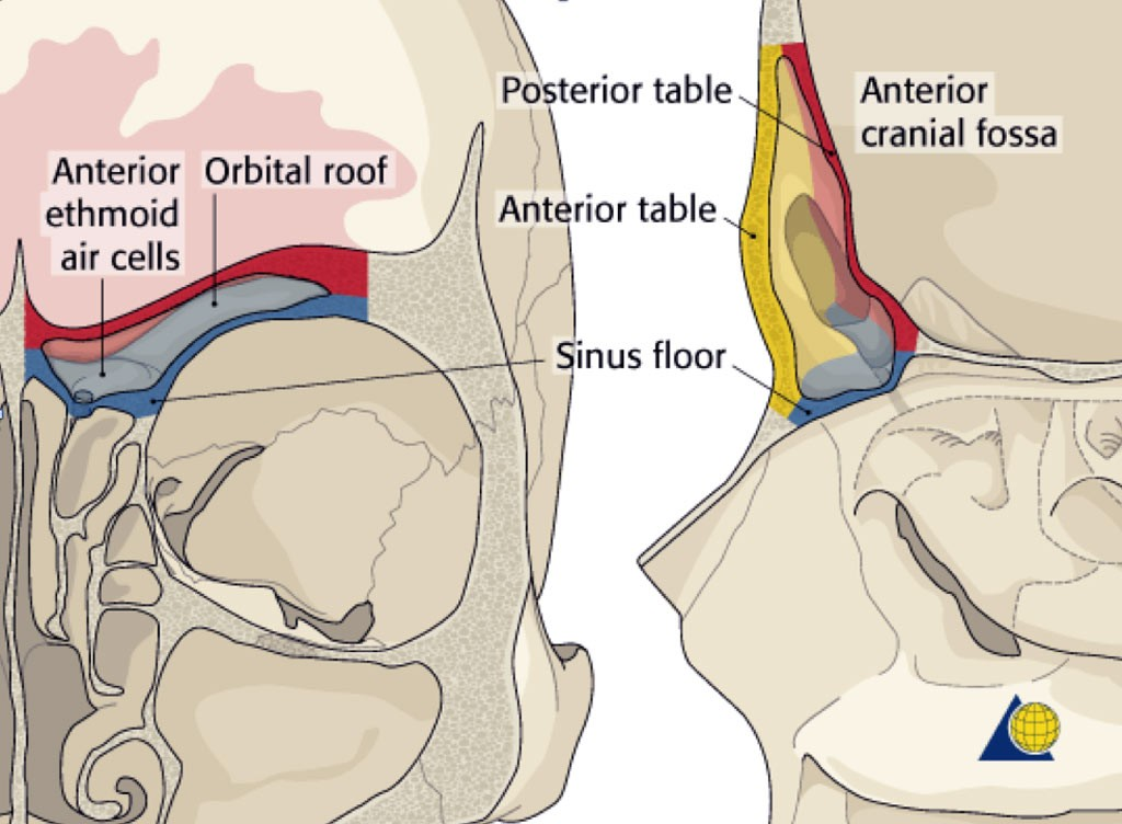 frontal sinus fracture treatment