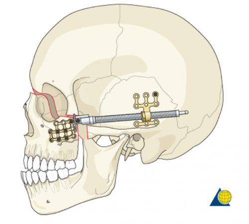 Distraction Osteogenesis (Bone Lengthening) lefort 3