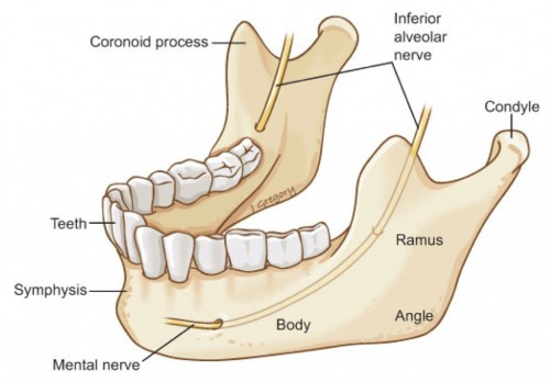 Fractures to the lower jaw, or mandible,