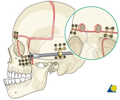 Distraction Osteogenesis (Bone Lengthening) monobloc distraction