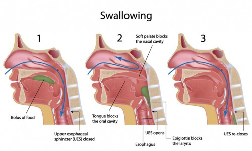 Swallowing with a cleft palate