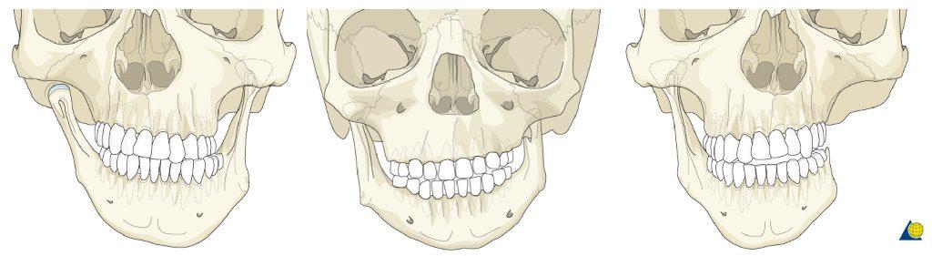 Hemifacial microsomia, or craniofacial microsomia,