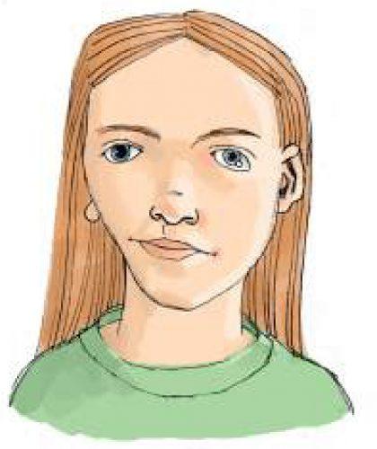 Craniofacial asymmetry and underdeveloped jaws (hemifacial microsomia).
