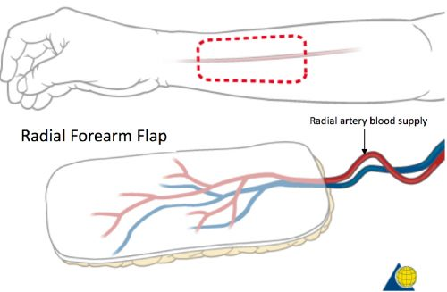 microsurgery-radial-forearm-flap-