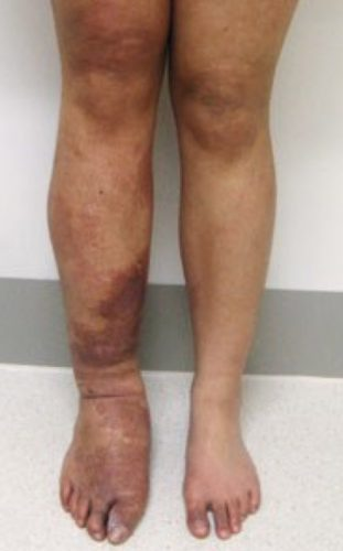 Combined Vascular Malformations