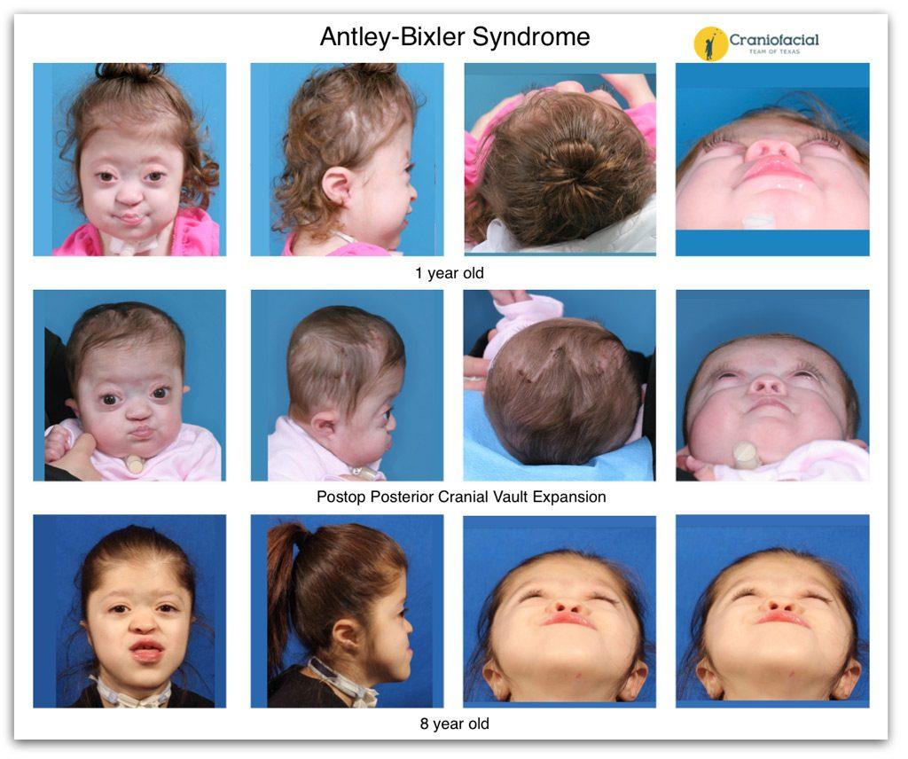 Craniofacial Antley-Bixler Syndrome is a rare genetic disorder