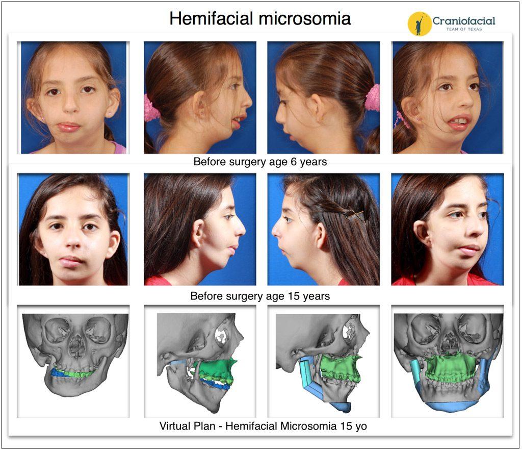 Hemifacial Microsomia Gallery craniofacial microsomia and otomandibular dysostosis