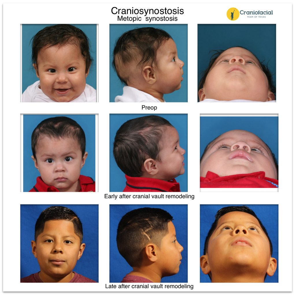 Metopic Synostosis - Craniofacial Team of Texas (CTOT) Austin