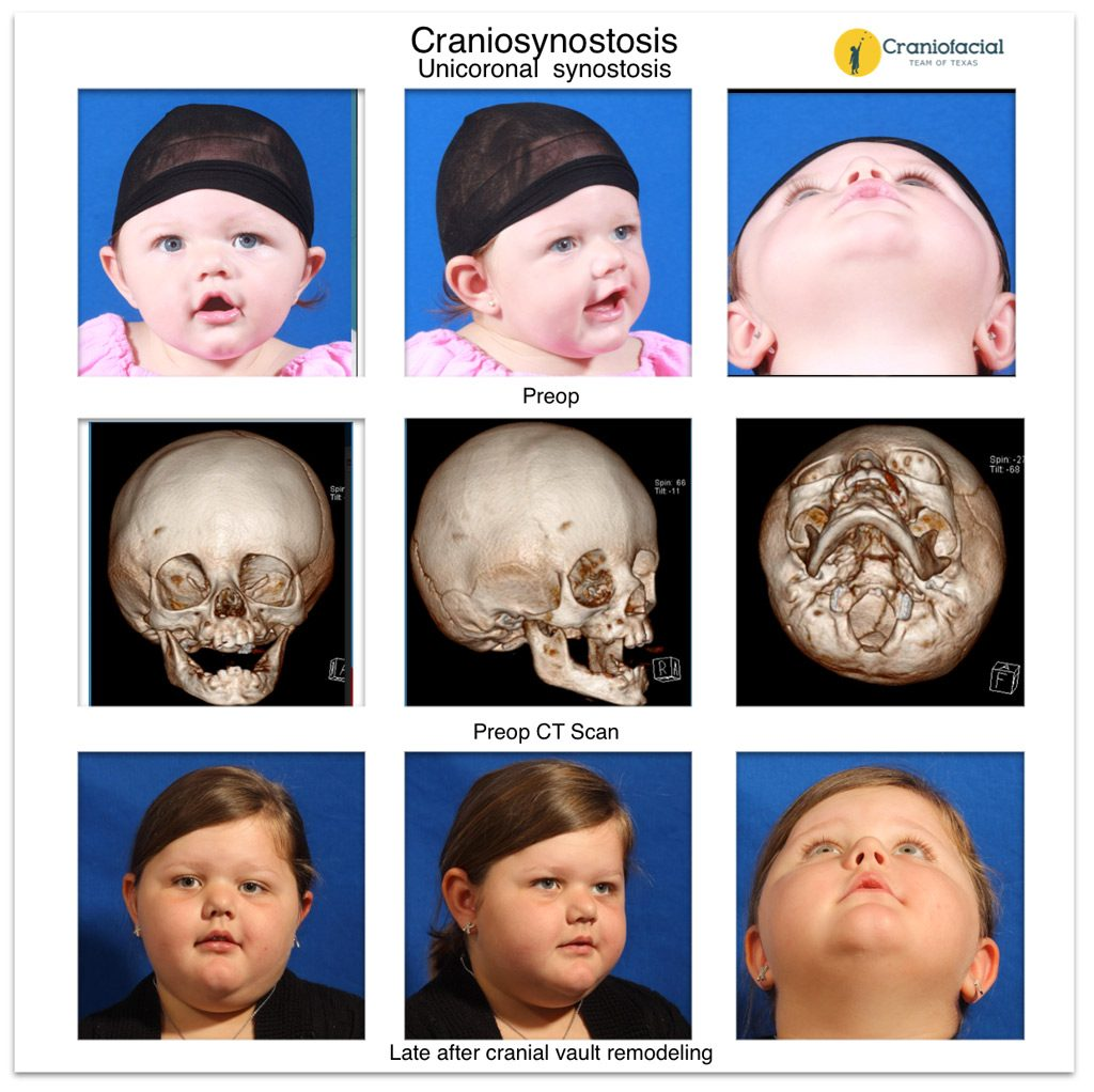 Unicoronal synostosis repair - Craniofacial Team of Texas (CTOT) Austin