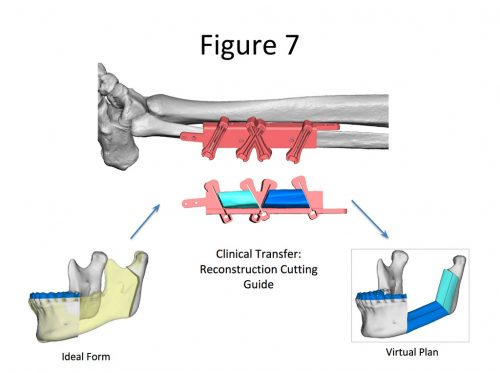 Virtual Surgical Planning