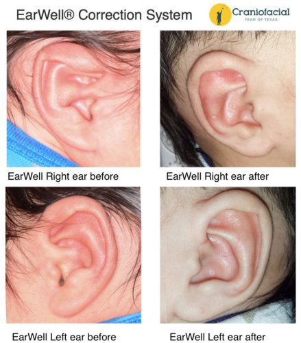 Pediatric Plastic and Reconstructive Surgery Ear Deformity Correction Infants EarWell® Correction System – Nonsurgical Ear Deformity Correction in Newborns