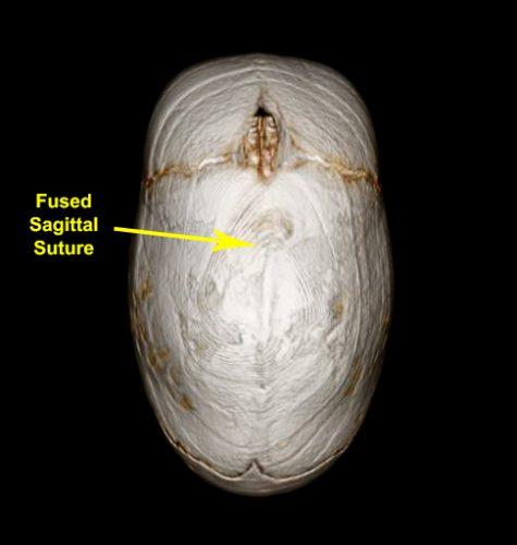 CT scan of sagittal craniosynostosis