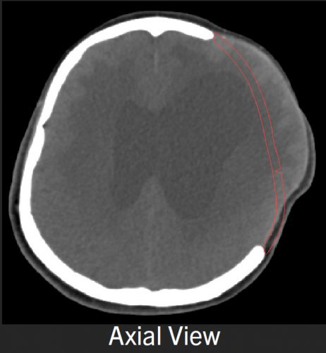 Axial view head CT before alloplastc cranioplasty