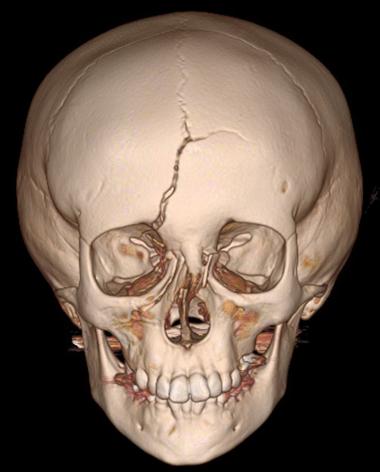 Pediatric Plastic and Reconstructive Surgery Pediatric Facial Trauma