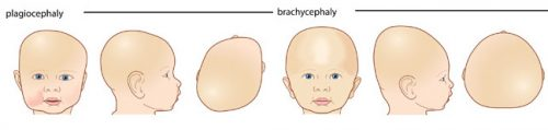Deformational or Positional Plagiocephaly