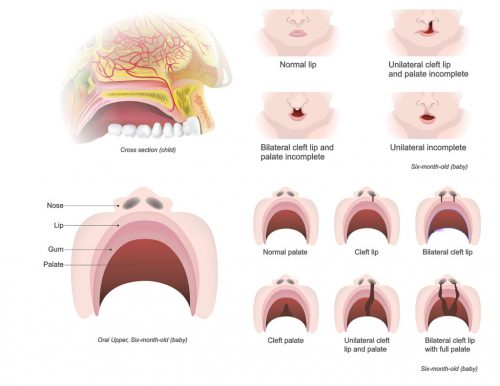cleft lip and palate diagnosis